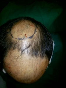 hair transplantation surgery in kolkata