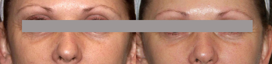 facelift surgery in kolkata