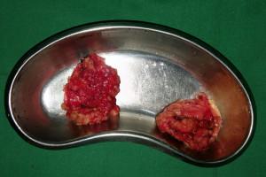 gynaecomastia2