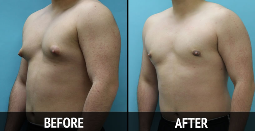 gynecomastia surgery in kolkata