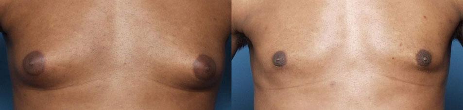 gynecomastia in kolkata