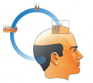 hair transplant in Kolkata | Hair transplant surgery | Hair Transplantation