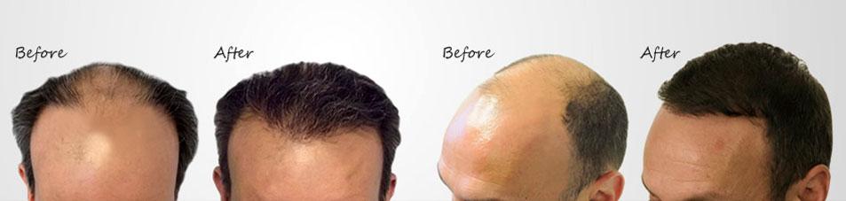 hair transplant clinic | Hair transplantation in kolkata | Hair loss treatment