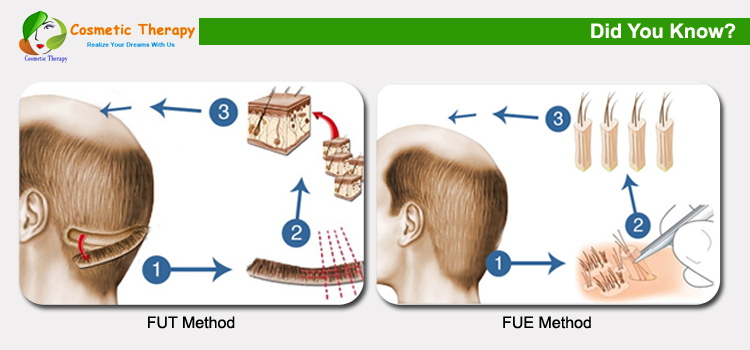 Hair transplantation methods hair loss treatment