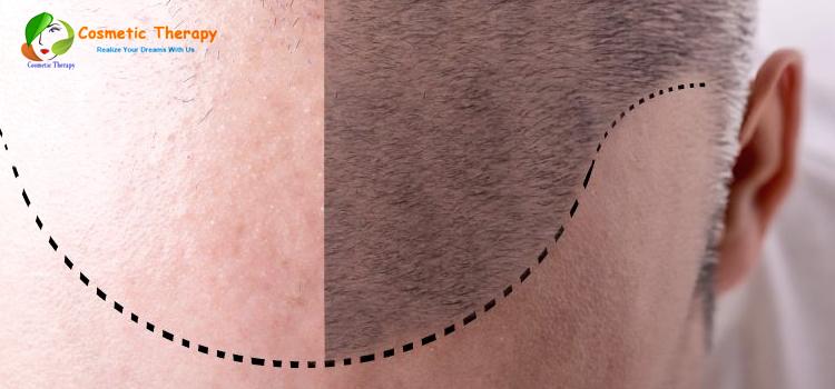 hair transplant surgeon l affordable hair transplantation