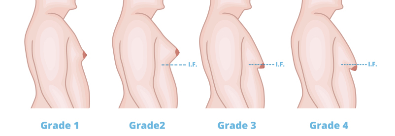 Best cosmetic surgeon | Gynecomastia surgeon |