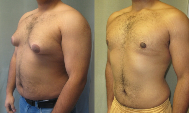 Gynecomastia | Male Breast Reduction Surgery | Cosmetic Surgery in Kolkata | Cosmetic Surgeon