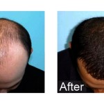 Hair Transplantation | Hair Transplant Surgery | Cosmetic Therapy
