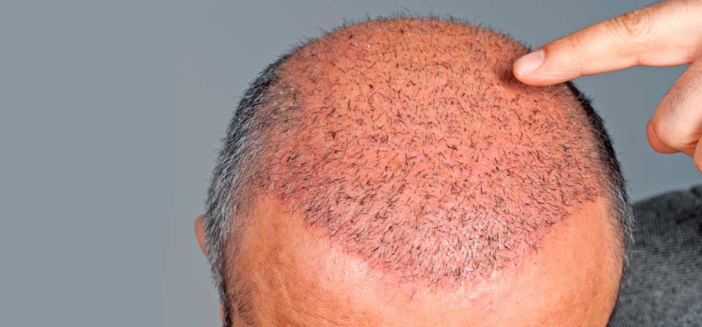 Hair Transplantation | Hair Transplant Surgery | Cosmetic Therapy | Best Hair Transplant Clinic Kolkata