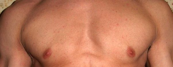 male breast cancer | gynecomastia | cosmetic therapy