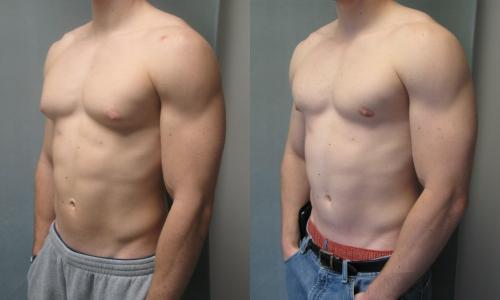 gynecomastia | Plastic Surgeon in Kolkata | cosmetic surgeries | cosmetic surgery clinic in Kolkata