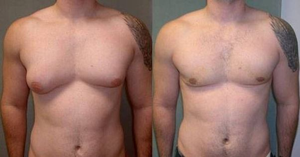 Gynecomastia | Man Boobs | Cosmetic Surgeon in Kolkata | Cosmetic Surgery | Man breast reduction surgery in Kolkata