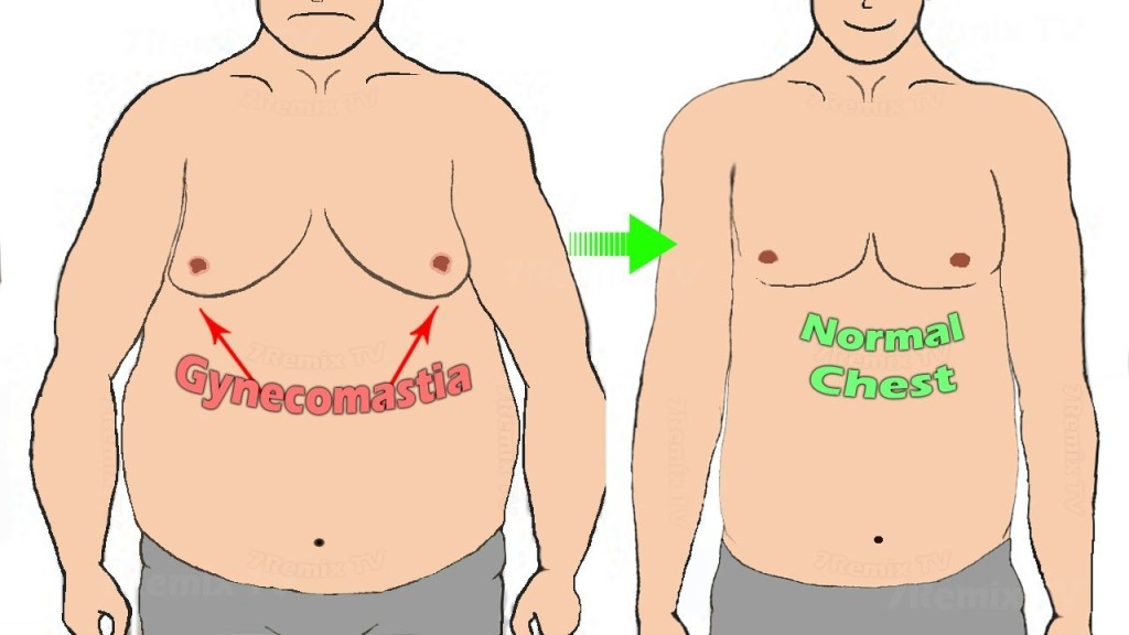 Enlargement of male breast