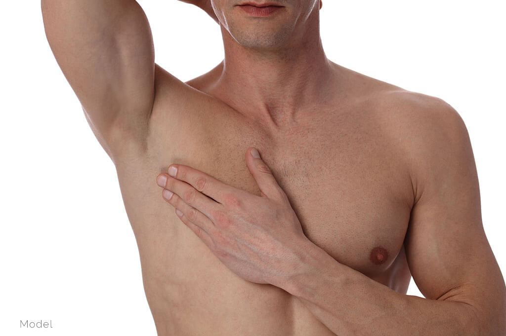 Breast reduction Gynecomastia Surgery for men have become common now..